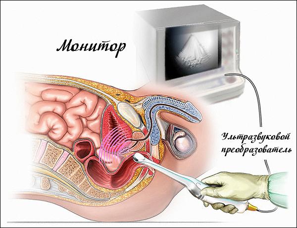 Повторная биопсия простаты сроки